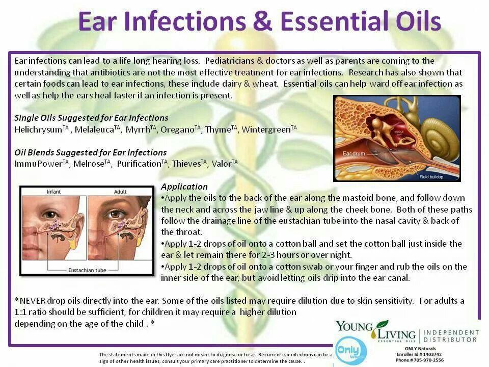 Pin On Ear Aches Ear Infection Swimmer S Ear Vertigo Tinnitus Young Living
