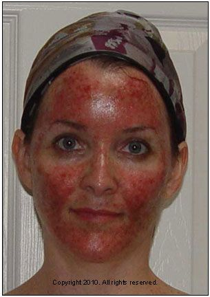 Efudex Cream Treatment Before And After Good Healthy Tan