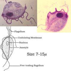 Dr. Diag - Dacryocystitis acuta, Giardiasis quizlet