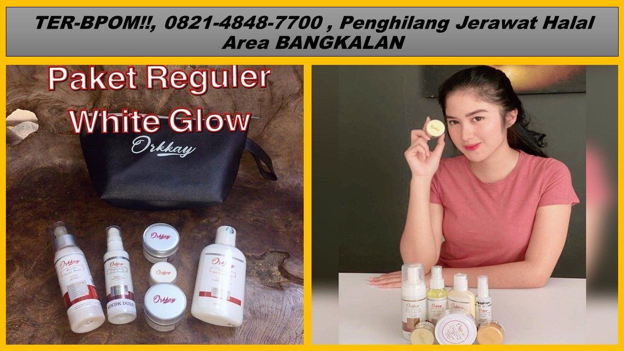 Skin Care Penghilang Jerawat Dan Pemutih Wajah