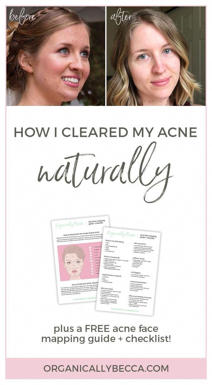 Acne face mapping guide, how to clear hormonal, cystic