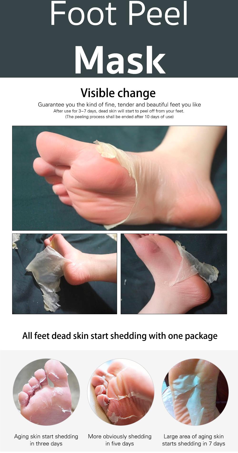 scrub dead skin off feet