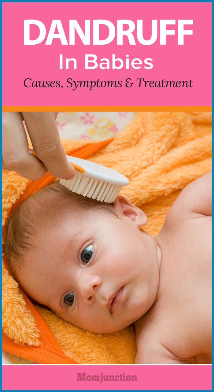 6 Ways To Get Rid Of Dandruff In Babies Getting Rid Of Dandruff Dandruff Dandruff Remedy