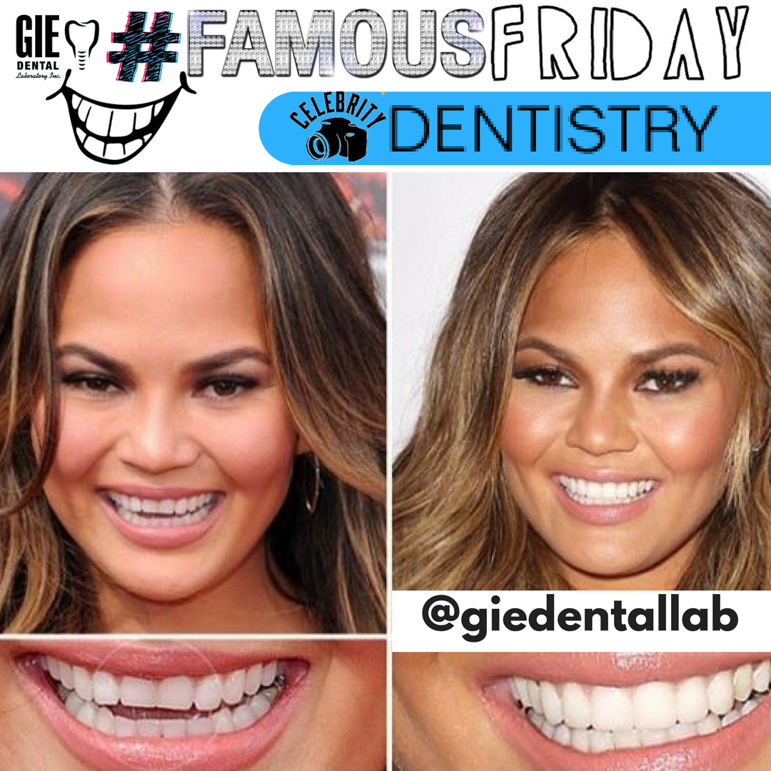 Pin by GIE Dental Lab on #FamousFriday Celebrity Dentistry