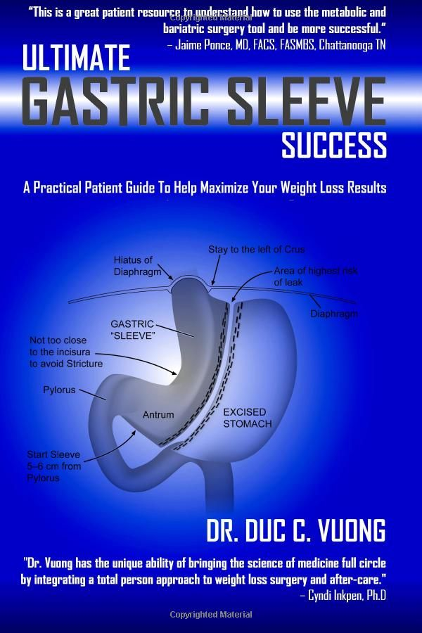 Ultimate Gastric Sleeve Success: A Practical Patient Guide To Help