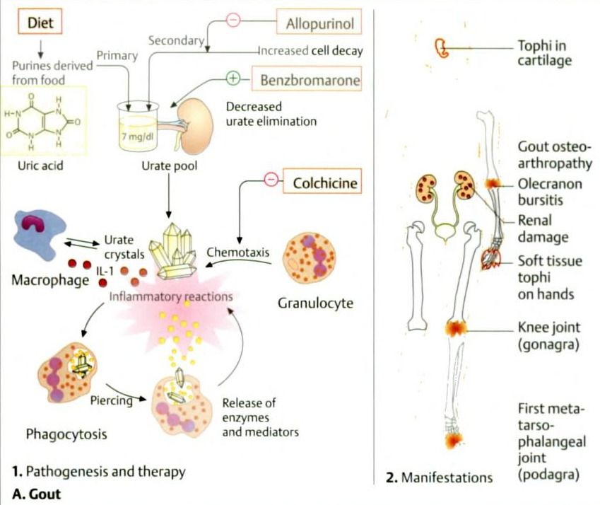 An update on the pathology and clinical management of gouty arthritis
