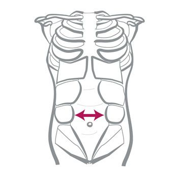 Beat the Mommy Belly Bulge: Exercises and Tips for Fixing Diastasis Recti