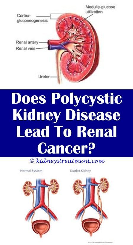 4 Awake Clever Ideas: Chronic Kidney Failure kidney cleanse lymphatic system.Kid... -   #vitamineAll #vitamineBeauty #vitamineDesign #kidneycleanse