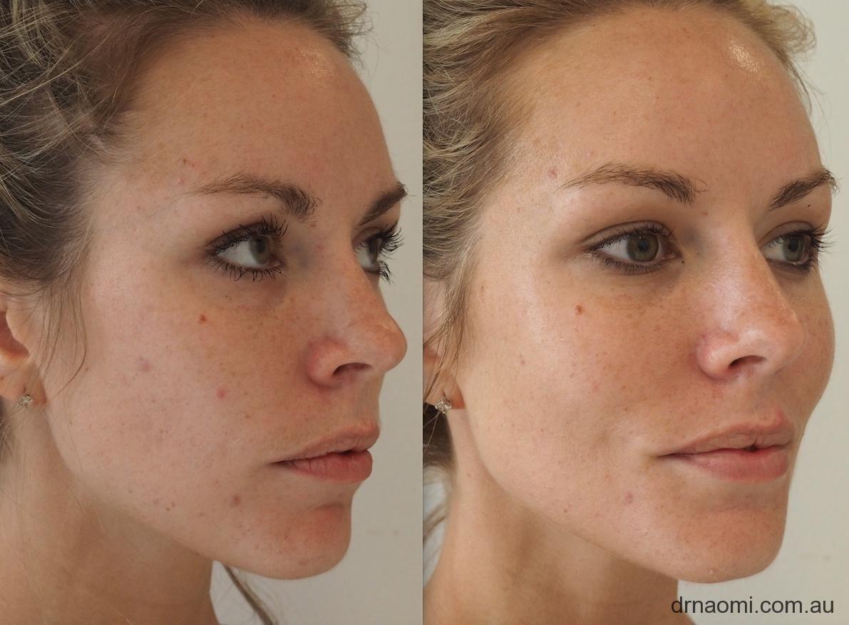 Restylane Perlane Juvederm Dermal Filler And Botox For 20