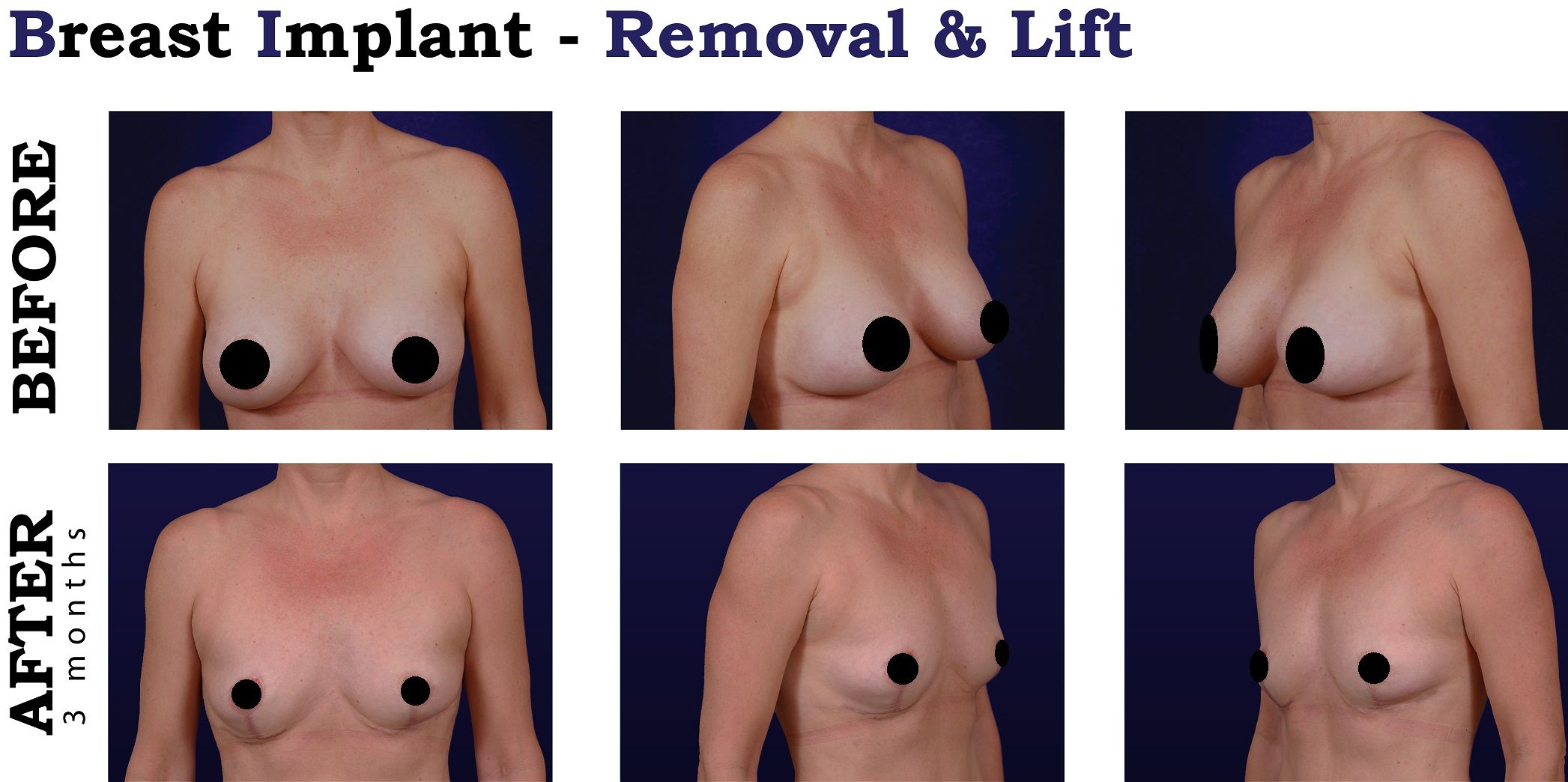 breast implant lift