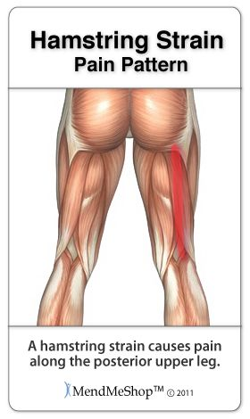A sharp pain or twinges may be felt along the length of your ...