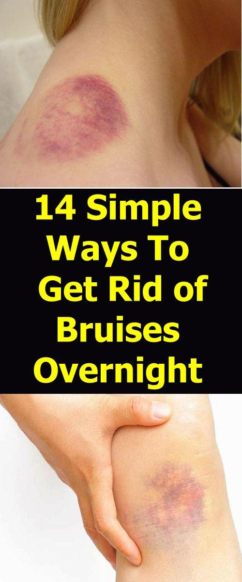4ff47ff060c2b9a32f69b1e046e7a756 - How To Get Rid Of Bruises On Face Overnight
