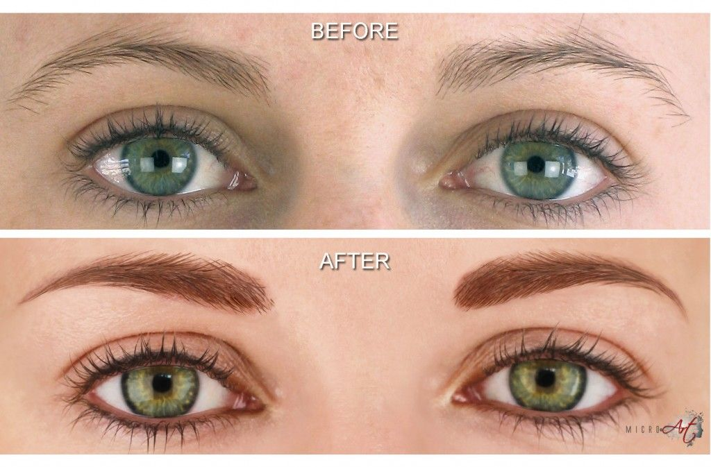 6f67bed44 Before & After Photos of MicroArt Semi Permanent Makeup for Eyebrows &  Eyeliner - an Alternative to Eyebrow Tattooing and Permanent Cosmetics