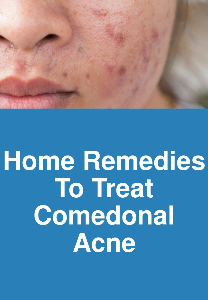 Home Remedies To Treat Comedonal Acne Comedonal Acne Home Remedies Acne