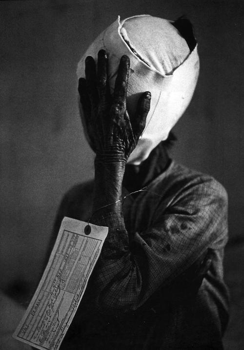 Philip Jones Griffith - Quang Ngai, Civilian victim, South Vietnam 1967. S)