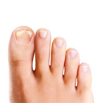 mycose des ongles de pied comment soigner les probl mes d 39 ongles ab m s vie quotidienne. Black Bedroom Furniture Sets. Home Design Ideas