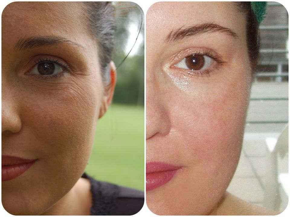 My own before/after results after 3 months of microneedling