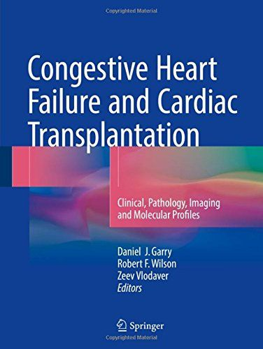 Congestive heart failure and cardiac transplantation pdf download congestive heart failure and cardiac transplantation pdf download e book fandeluxe Image collections