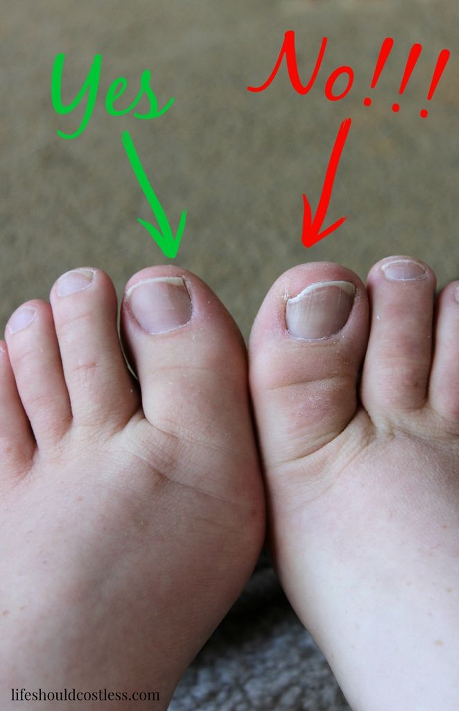 The Secret To Life Without Ingrown Toenails |LIFE SHOULD COST LESS ...