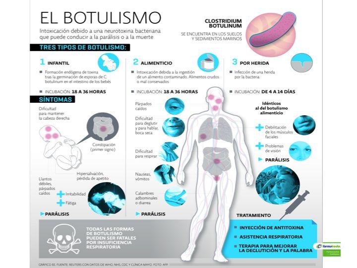 Clostridium botulinum principales síntomas de diabetes