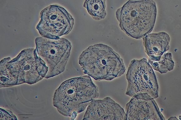 The human cheek cell microscope lab
