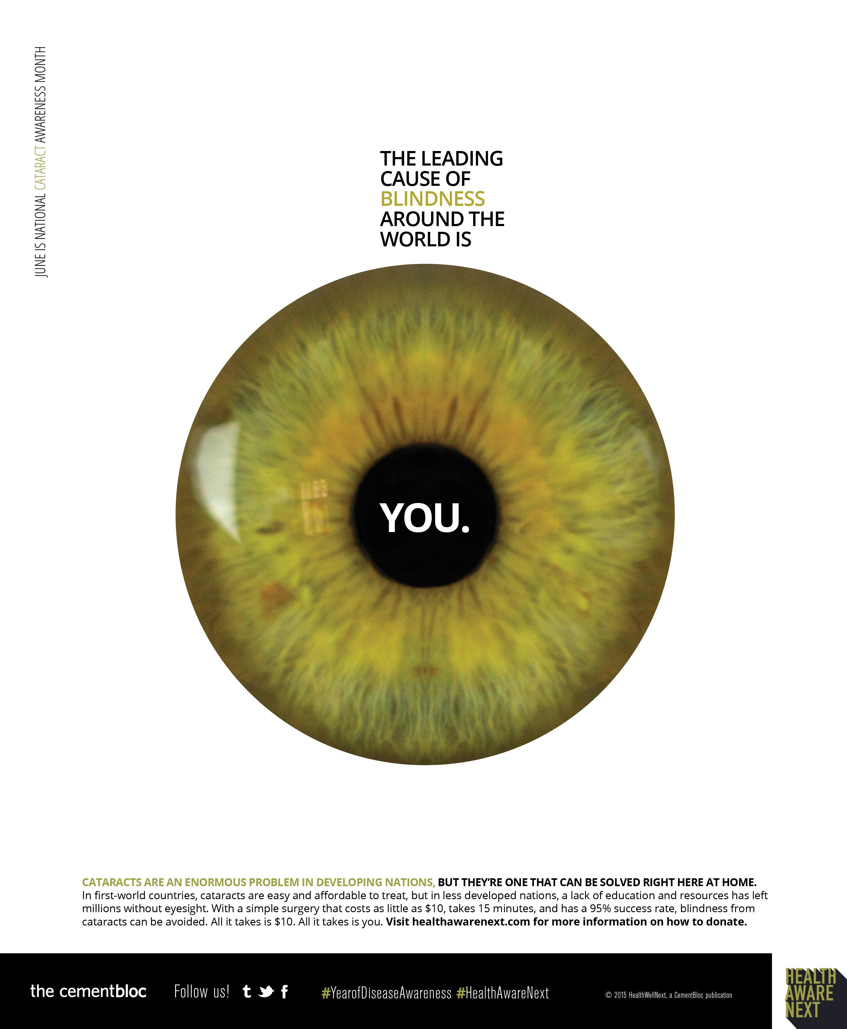 with macular blindness can foundation info cataracts cause conditions blinds golden lab blind eye seen degeneration