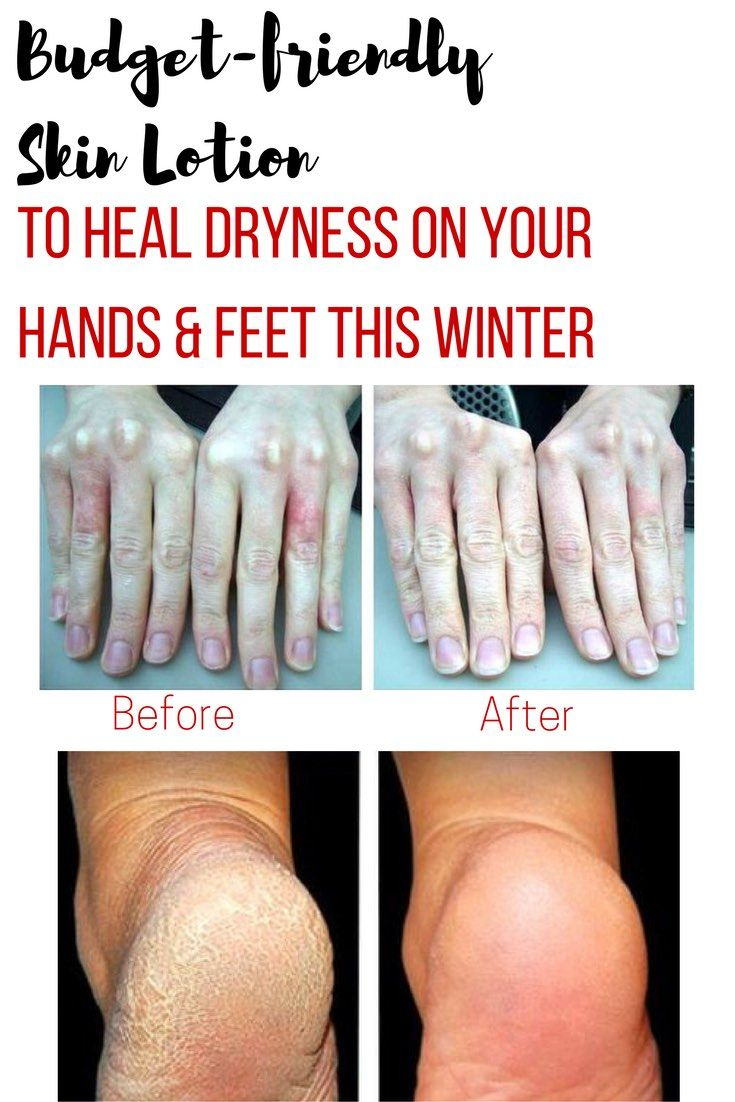Winter can be harsh to your hands and feet. See what I did to reduce dryness on my hands and callous on my feet without spending lots of money on products that may or may not work or my weekends at the nail salon getting pedis.