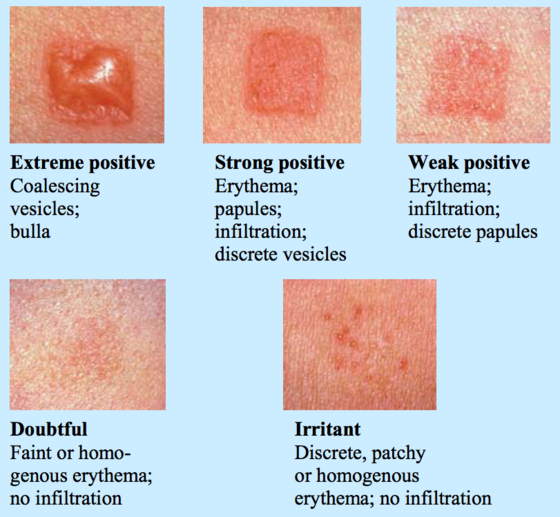 Suddenly Allergic Contact dermatitis, Suddenly and Asthma