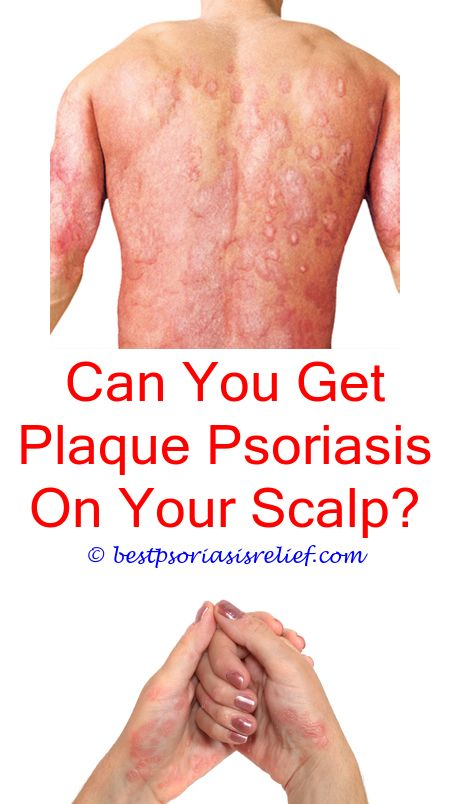 can you catch psoriasis sexually