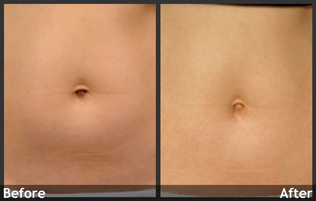 Thermage Laser Skin Tightening Before And After Www Aboutfaceskincare Com Laser Skin Tightening Skin Tightening Thermage