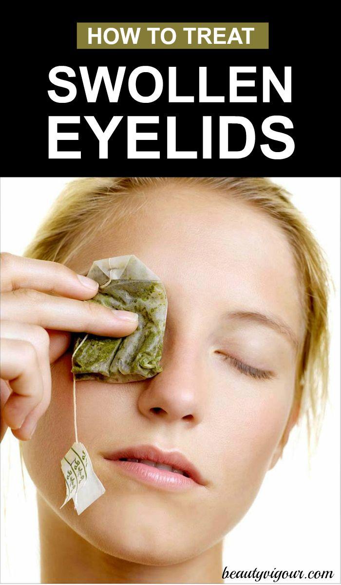 How to Treat Swollen Eyelids Naturally | Health | Swollen