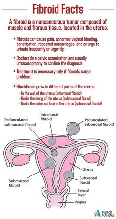 By age 45, about 7 out of 10 women develop fibroids of the
