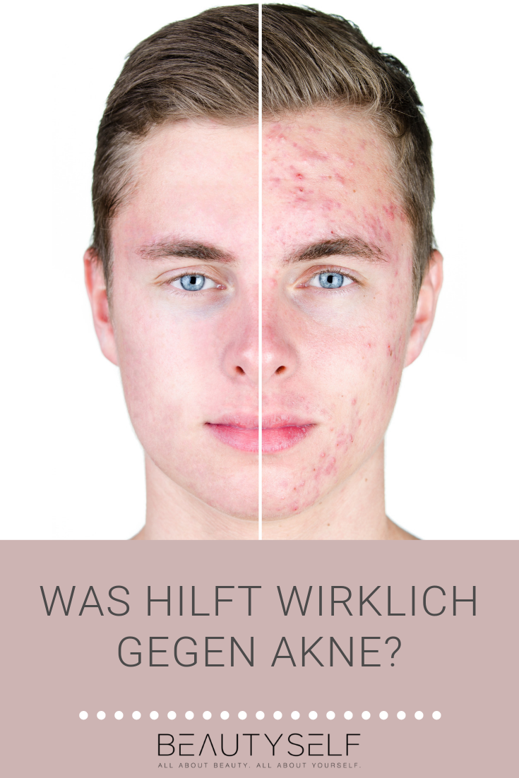 Photo of Akne & Aknenarben – Hautproblem | Hautpflege | Beautyself