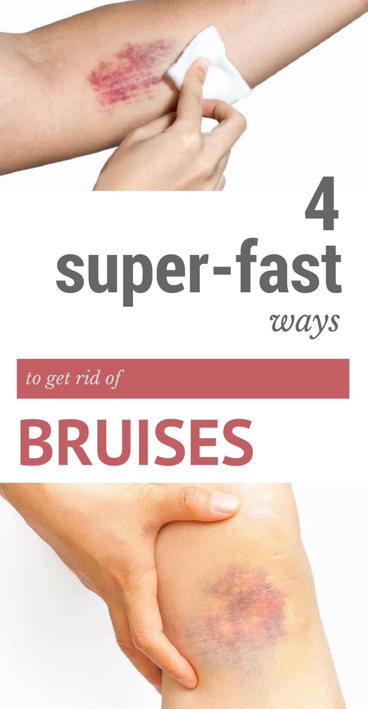 5039d0f8fe835cd7fa4279f9ac32f4ea - How To Get Rid Of Bruises On Face Overnight