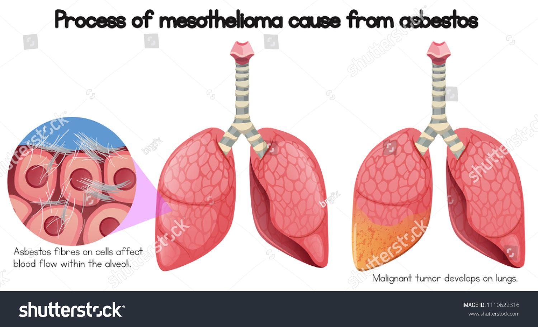 42+ How asbestos causes mesothelioma