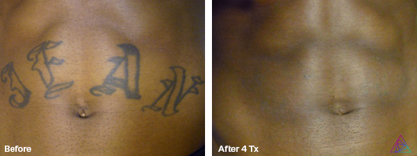 Laser Tattoo Removal Dallas Laser Tattoo Removal Laser Tattoo