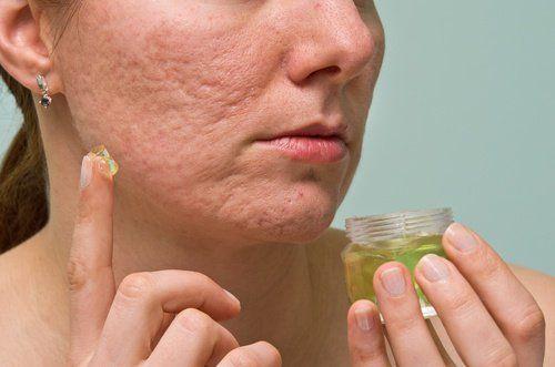 Generalmente los tratamientos para elacné, espinillas ydemáspueden dejar rastrosdespuésdesuuso(manchas, cicatrices, etc.) lo que deja al consumidor de estos productos y al paciente sin much…