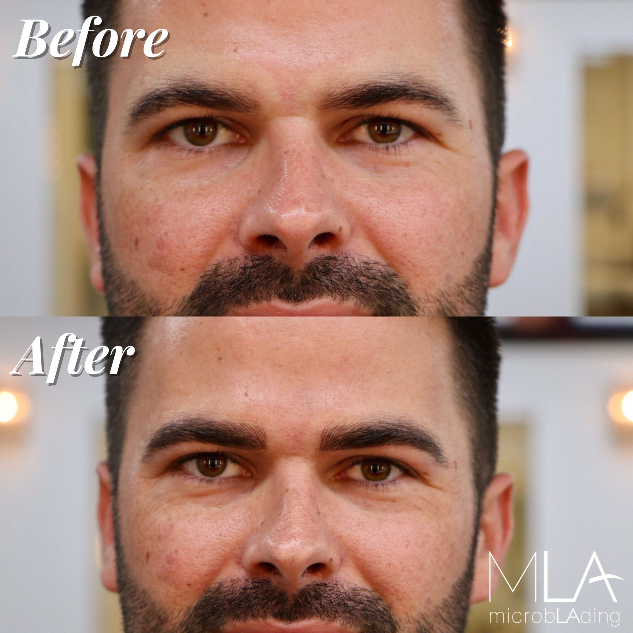 Microblading For Men Microblading Hair Strokes Can Look Very