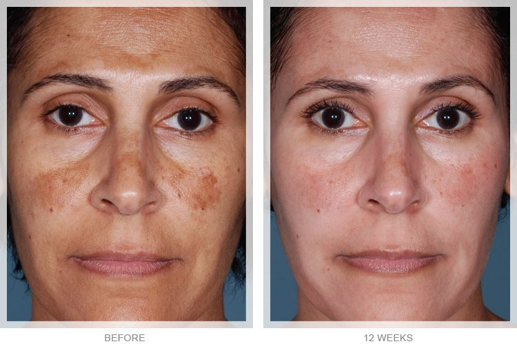 See How Obagi Nuderm Besospa Can Transform Your Skin In