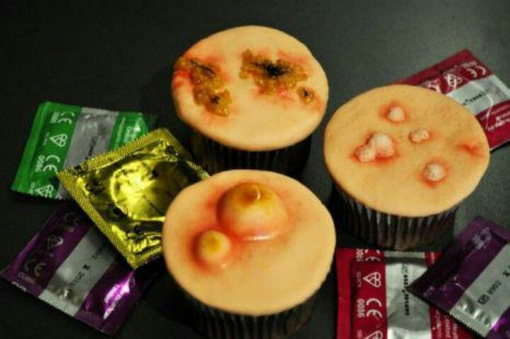 STD themed cupcakes...