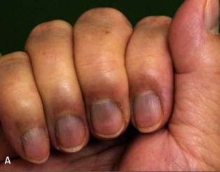 Few People Know The Half Moon Shape On Your Nail Could Save Your Life What You Need To Know In 2020 Fingernail Health Signs Fingernail Health Nail Health Signs