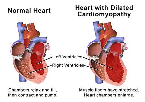 weak heart diagram 17 fearless wonder de \u2022