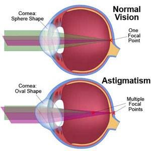What Is An Astigmatism A Person S Eye Is Naturally Shaped Like A