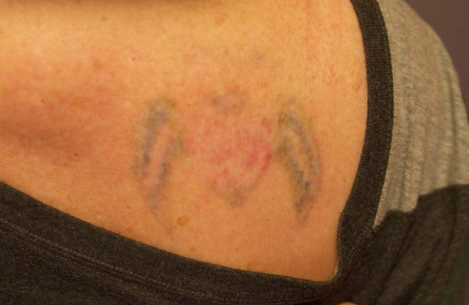 Ten Things About Laser Tattoo Removal Before And After First