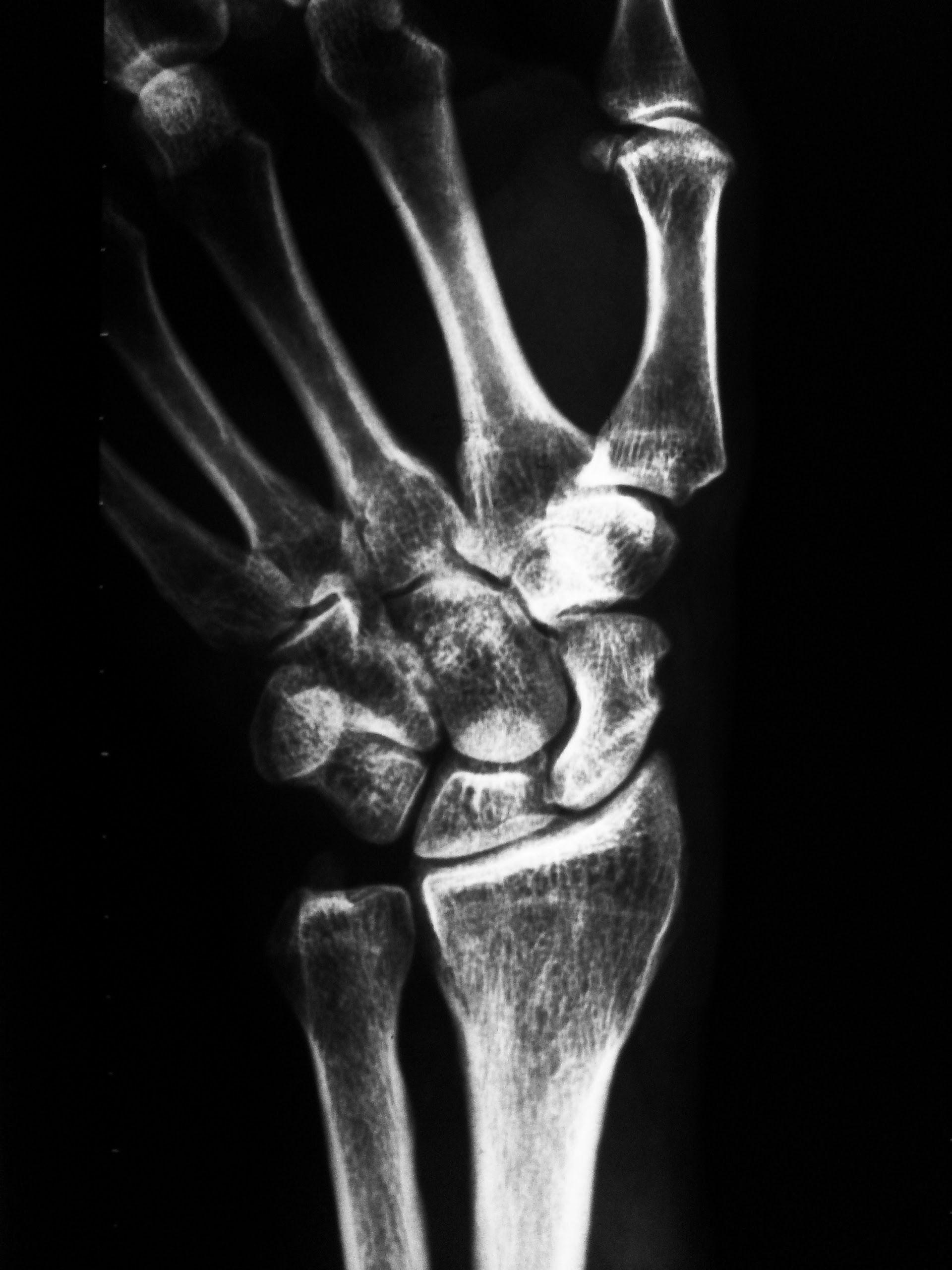 Radiografía de la muñeca, posición para estudiar el hueso escafoides ...