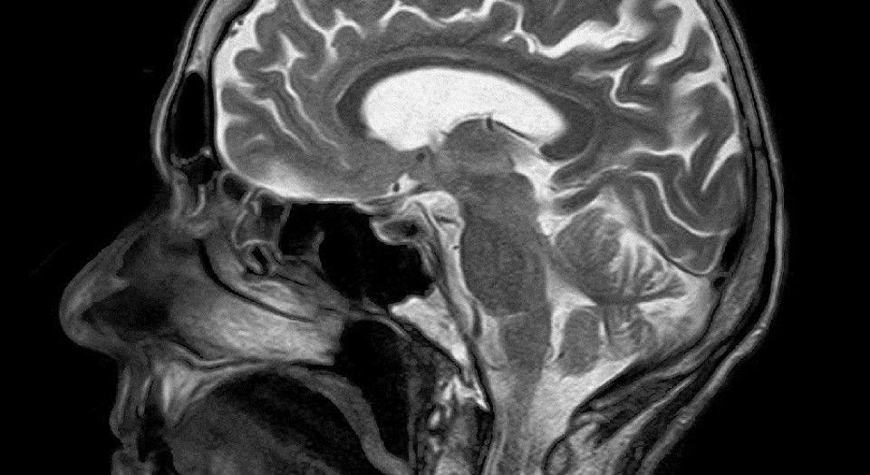 Pin On Neuro