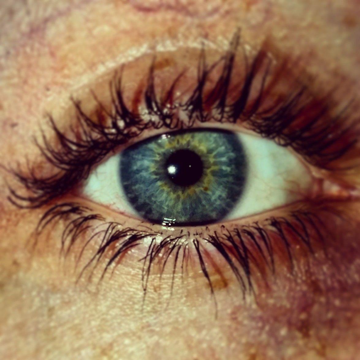 Centralheterochromia Limbalring Eyes Eye Blue Grey Yellow