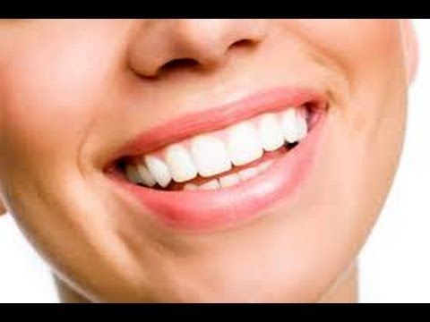 How To Whiten Teeth Naturally Ms Toi Youtube Health And