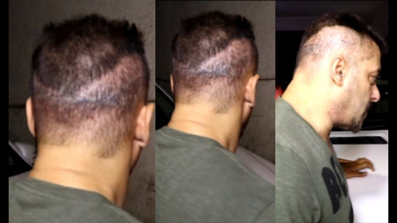 Celebrity Hair Transplant Is In News These Days Salman Khan Has Got