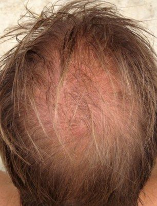 Would You Fork Out A Hair Raising 163 12 000 To Fix Your Bald